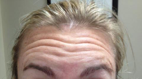 Before-Forehead