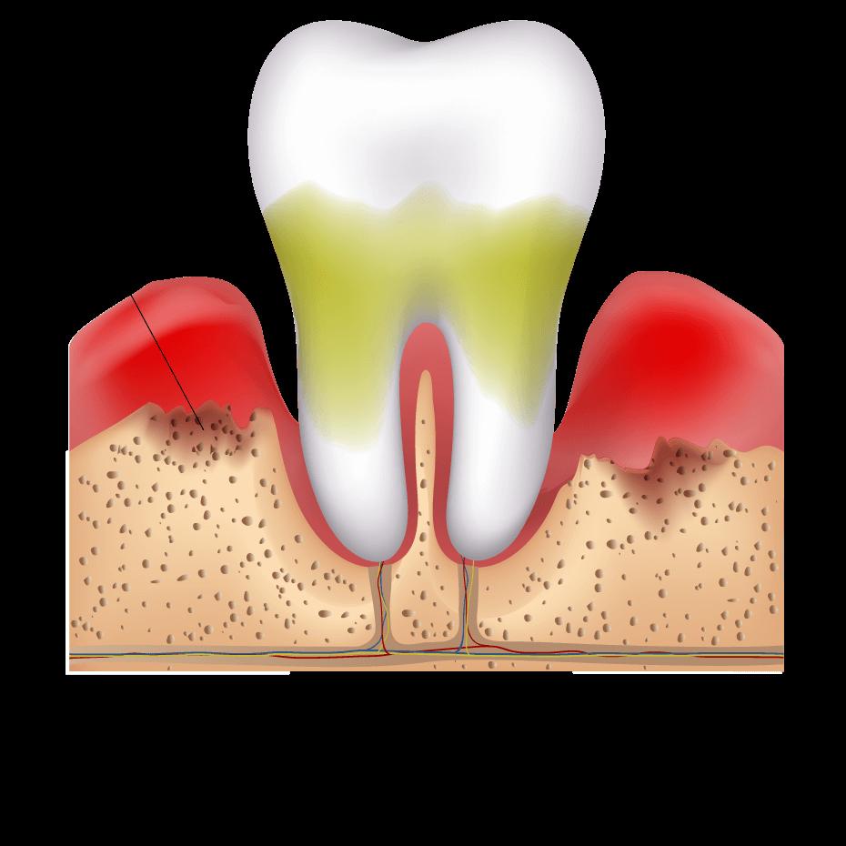 Gum / Periodontal Disese